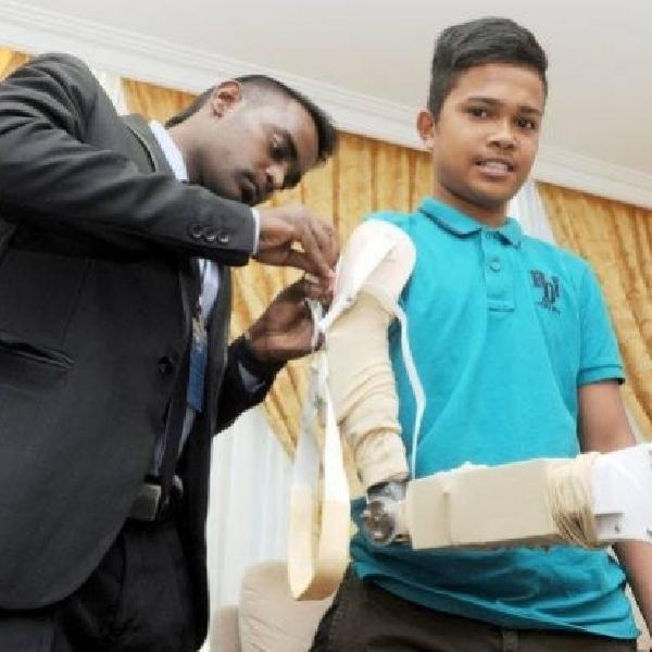 Ilmuwan Malaysia Berhasil Tanam Lengan Robotik Rendah Biaya